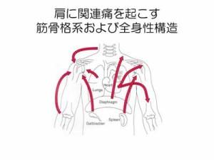 【図】肩の関連痛